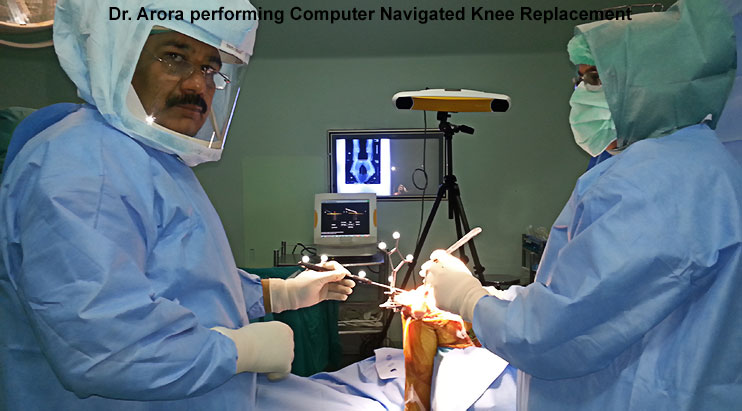 Dr. Arora performing computer assisted knee replacement