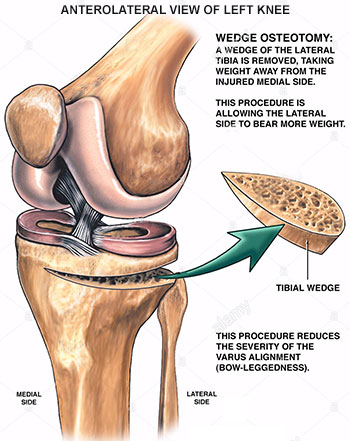 Knee Osteotomy Procedure